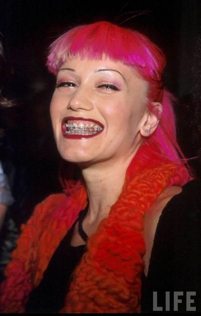 gwen-stefani-and-braces-gallery